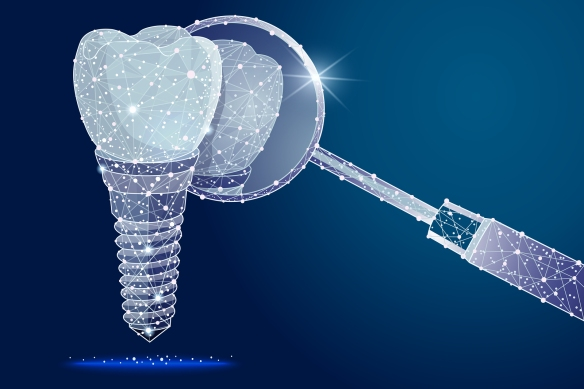Dentists in Peterborough, Dental Implants in Peterborough, Lindsay Dentists, Kawarthas Periodontists,
