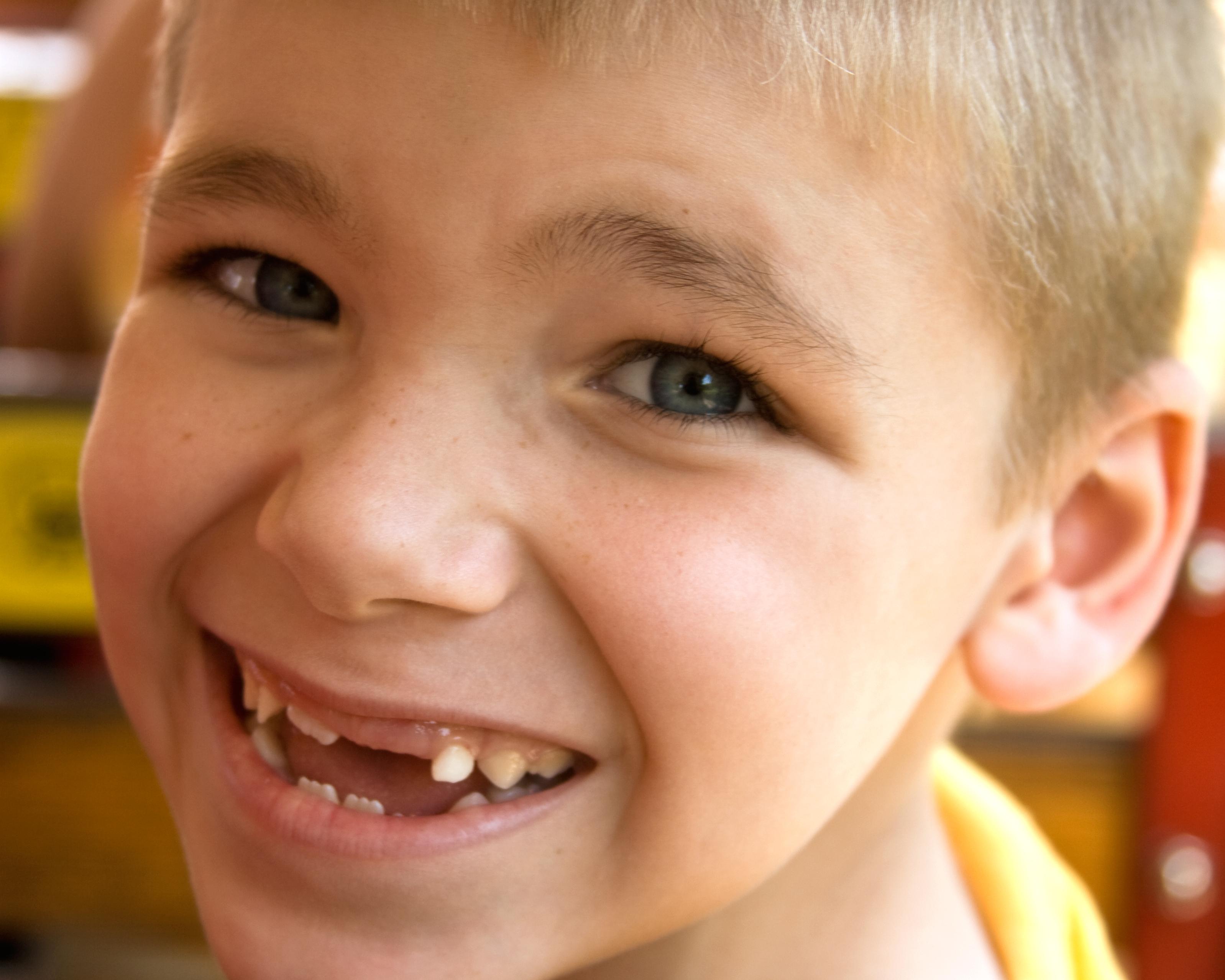 Девушки маленькими зубами фото