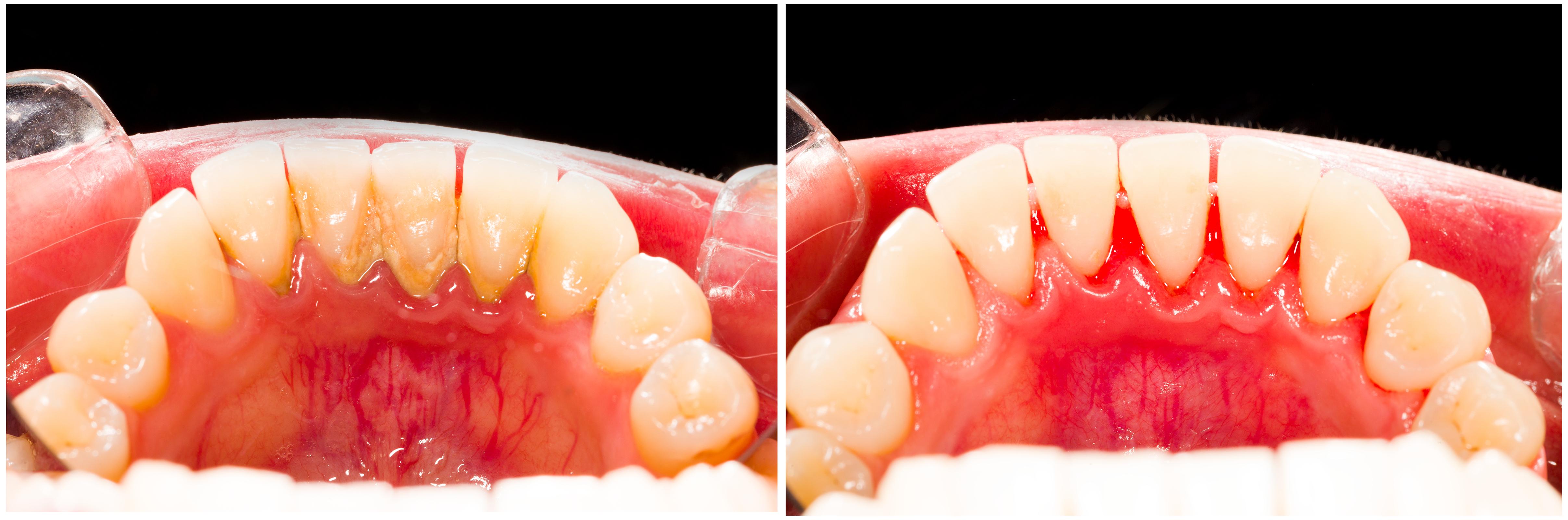 Peterborough periodontist dr annabel braganza 705 741 1885 - Comment enlever le tartre ...