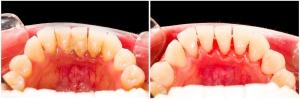 Plaque Removal, Peterborough Periodontists, Gum Specialist, Calculus,