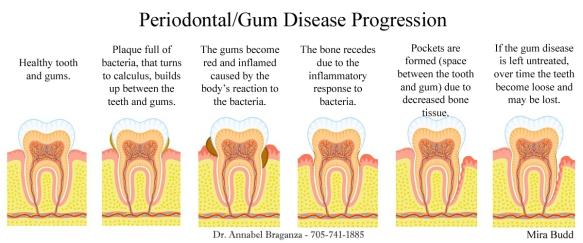 Gum Disease, Gum Disease Progression, Peterborough Periodontist, Top Periodontist in Toronto, Kawarths Periodontists, Dentists in Oshawa, Dental Information, Periodontal Disease,