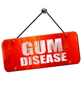 gum disease, symptoms of gum disease, dental health, teeth care, peterborough periodontists,