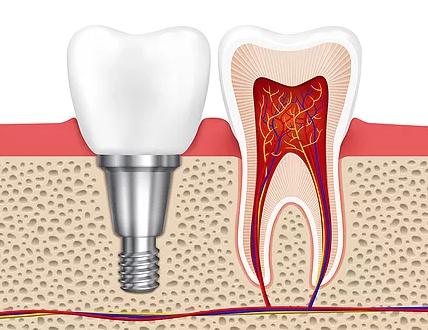 Peterborough Periodontists, Top Dentist in Peterborough, Dental Implants, Dental Health, Kawarthas, Dentists,